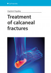 Treatment of calcaneal fractures